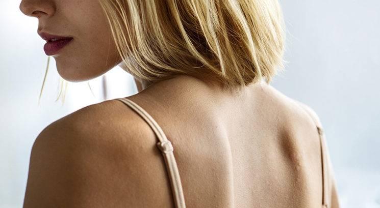Kako se spopasti z mozolji na hrbtu, dekolteju in ostalih delih telesa